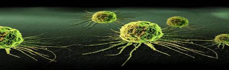 Miljoenen mensen zijn ten onrechte behandeld voor kanker terwijl ze geen kanker hadden! | Alternatieve geneeswijze | Scoop.it