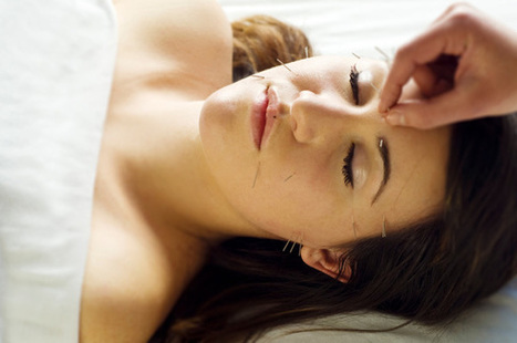 Cosmetic acupuncture: Younger skin | Acupuncture Bedford | Scoop.it