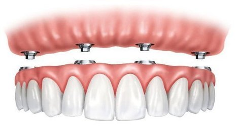 Overdenture market in France among most profitable in Europe | Dental Tribune International | Dental Implant and Bone Regeneration | Scoop.it