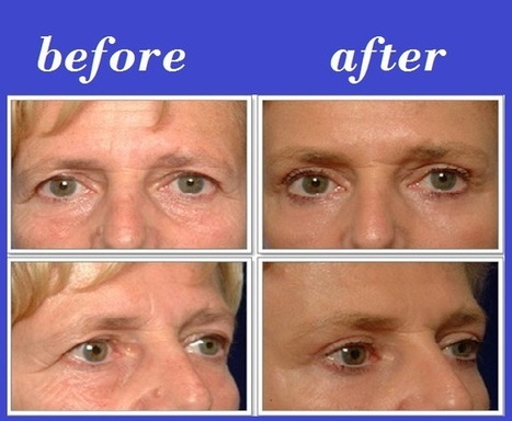 Eyelid Lift Thailand | Bangkok Aesthetic Surgery Center | The Best Plastic Surgery Clinic In Thailand | Scoop.it