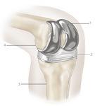 Knee Replacement Surgery Thailand   Bangkok Plastic Surgery   The Best Plastic Surgery In Thailand   Scoop.it