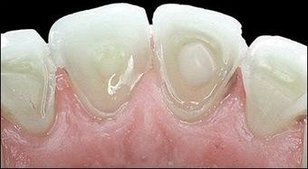 Mesa AZ Dentist General Family & Cosmetic Dentistry: Mesa AZ Dentist Anorexia Nervosa Decay and Dental Implants | Mesa Dentist | Scoop.it
