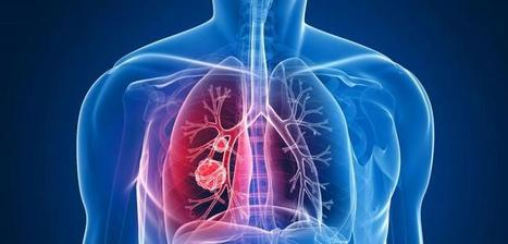 Medical Trip to India for Lung Cancer Treatment: African Patient Guide :: KBL | Cancer Treatment | Scoop.it