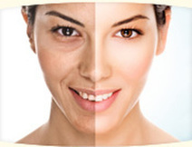 Bring Back Your Confidence With Non Surgical Wrinkle Treatment | laser scar removal mississippi | Scoop.it