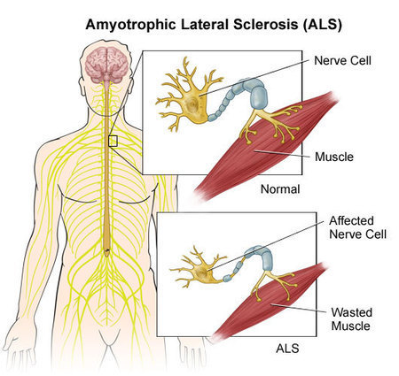 Amyotrophic Lateral Sclerosis – Causes, Symptoms, Treatment | Lou Gehrig's disease | Scoop.it