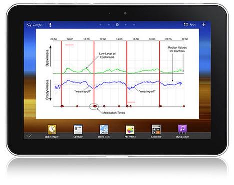 Parkinson's KinetiGraph Wrist-Worn Datalogger of Motion Receives FDA Clearance | Digitized Health | Scoop.it
