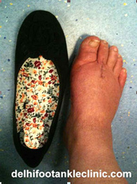 Bunion Surgery in india | Health | Scoop.it