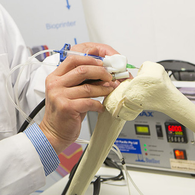 """3D-printing BioPen """"draws"""" with living cells to repair damaged bones 