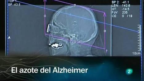 Redes - El azote del Alzheimer, Redes - RTVE.es A la Carta   Neuroscience: Alzheimer's disease   Scoop.it