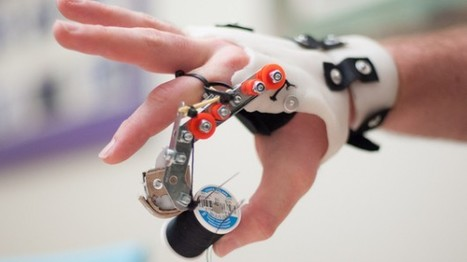 coming up short handed: home-built mechanical finger | Medical Engineering = MEDINEERING | Scoop.it