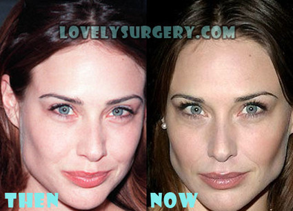 Claire Forlani Plastic Surgery Before and After Photos | Celebrity Plastic Surgery | Scoop.it