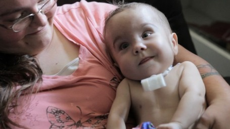 Doctors save baby's life with 3D-printed tracheal implant | Technoculture | Scoop.it