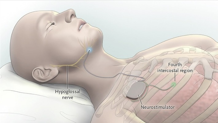 This Electronic Sleep Apnea Cure Is Like Auto-Pilot for Breathing | Kinsanity | Scoop.it