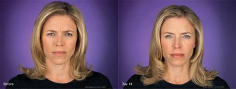 Botox at Rosenblum Plastic Surgery   CHOOSING THE RIGHT TYPE OF LIPOSUCTION   Scoop.it