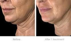 Neck lift Thailand, Turkey Neck, Non Surgical- Urban Beauty Thailand | Ulthera Skin tightening, Thailand - Ultherapy Tone Tighten Lift Loose Skin Lowest Price! | Scoop.it