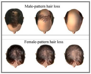 Know The Causes And Treatment Options For Hair Loss | Prohair Clinic | Scoop.it