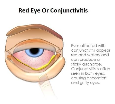 Conjunctivitis Or Eye-Flu   Eye Care   Scoop.it