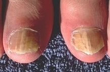 Blog - Footandnailfungus | Deal with Toe or Nail Fungus | Scoop.it