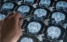 National screening programme for Alzheimer's disease on horizon as drugs due by 2025 | Media summaries | Scoop.it