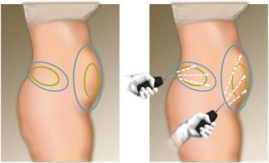 Liposuccion laser: Se débarrasser de la cellulite sans chirurgie! | Chirurgie Esthétique du Visage | Scoop.it