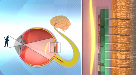The laser-powered bionic eye that gives a 576-pixel grayscale vision to the blind | Amazing Science | Scoop.it