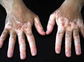 Vitiligo Hastalığı Nedir? Bulaşıcı mıdır? | Vikipedi | Vikipedi | Scoop.it