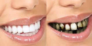 Dentist in Reseda CA | Winnetka Dental | Scoop.it