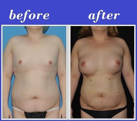 Body Reshaping Photos Thailand | Bangkok Aesthetic Surgery Center | Best Plastic Surgery Thailand | Scoop.it