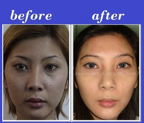 Forehead Augmentation Filler Injection | Bangkok Aesthetic Surgery Center | Bangkok Aesthetic Surgery Center | Scoop.it