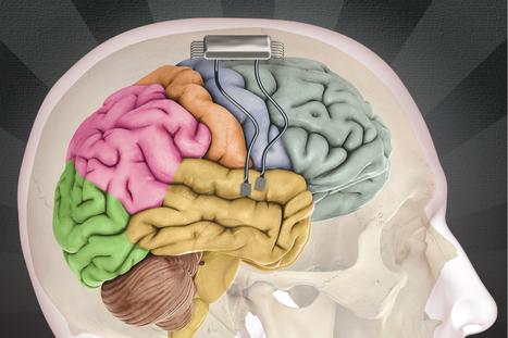 Scientists 'Eavesdrop' On A Brain | Bioanalyytikko | Scoop.it