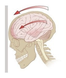 The Concussed Brain at Work: fMRI Study Documents Brain Activation During Concussion Recovery   Neuroscienze   Scoop.it