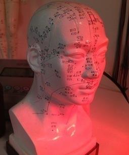 Brain MRI Shows Acupuncture Relieves Migraines | Brainology | Scoop.it