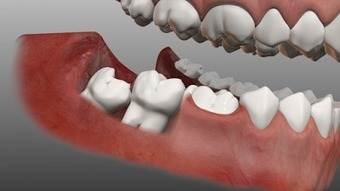 Why wisdom tooth removal is important and the actual reason behind its name | Wisdom Teeth Dentist | Scoop.it