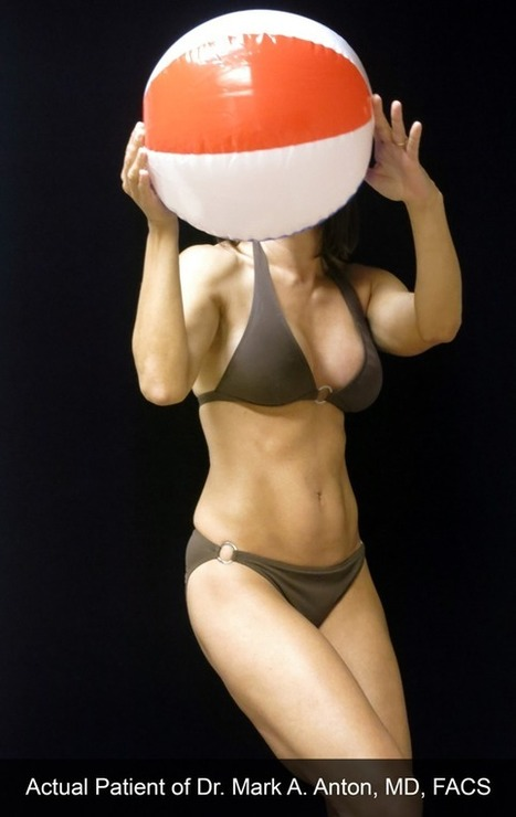 The Bikini Makeover: One Newport Beach Mom Shares Her Story   Plastic Surgery & Skin Care   Scoop.it