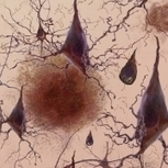 Reversing Alzheimer's gene 'blockade' can restore memory, other cognitive functions - MIT News Office | :: The 4th Era :: | Scoop.it