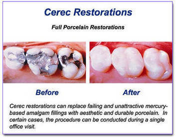 Get White fillings for damaged tooth and smile proudly. | Dentistry Offers | Scoop.it