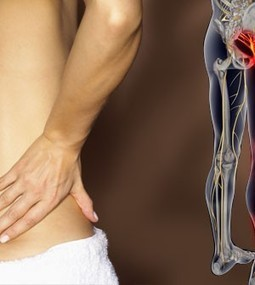 Examining The Best Treatments For Sciatic Nerve Pain | Cyrus | Scoop.it