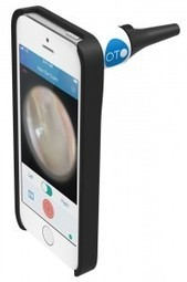 OTO, l'otoscope connecté pour détecter les otites - Web des Objets