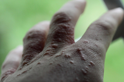 Attack of the 500-Pound Poison Ivy | OnEarth Magazine | Erba Volant - Applied Plant Science | Scoop.it