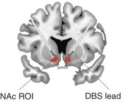 Brain stimulation restores normal activity in obsessive-compulsive disorder | BrainFacts.org Blog | Obsessive Compulsive Disorder | Scoop.it