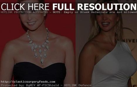 Ivanka Trump Plastic Surgery Before After Photos - Breast, Nose | Plastic Surgery Before and After Photos | Scoop.it