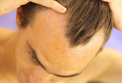 """Say """"No"""" to Early Signs of Balding with Har Vokse 
