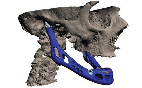 3D printer builds new jaw bone for transplant - Telegraph | 3D Printing & It's Implications for the Near Future | Scoop.it
