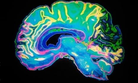 Dementia hits women hardest – study | Social Neuroscience Advances | Scoop.it
