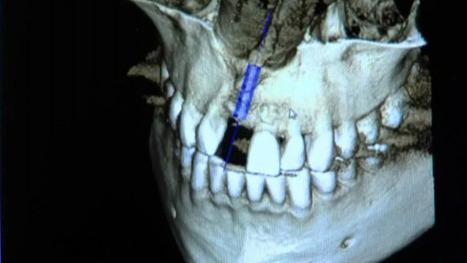 Stem cells may help regrow teeth   Dental Implant and Bone Regeneration   Scoop.it