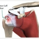 Rotator Cuff Tear Physiotherapy Symptoms,Causes,treatment,Precautions | Physiotherapy Clinic in Gurgaon | Scoop.it