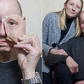 How 3D Printing Gave This Man His Life (and Face) Back | Made Different | Scoop.it