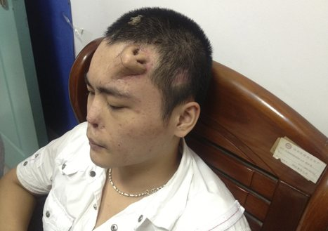 Amazing photos show man's new nose grown on his forehead | Geekari | Scoop.it