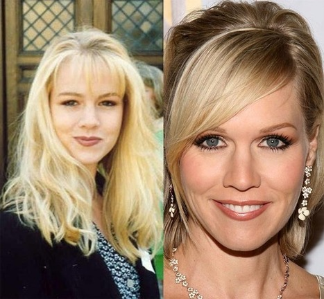 Did Jennie Garth Have Plastic Surgery? Looks young with Botox Fillers | Skin Undermining Facelift | Scoop.it