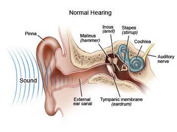 Cochlear Implants | Aspect 1 Technology | Scoop.it